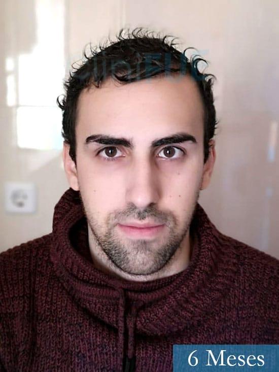 Javier trasplante de pelo turquia 6 meses