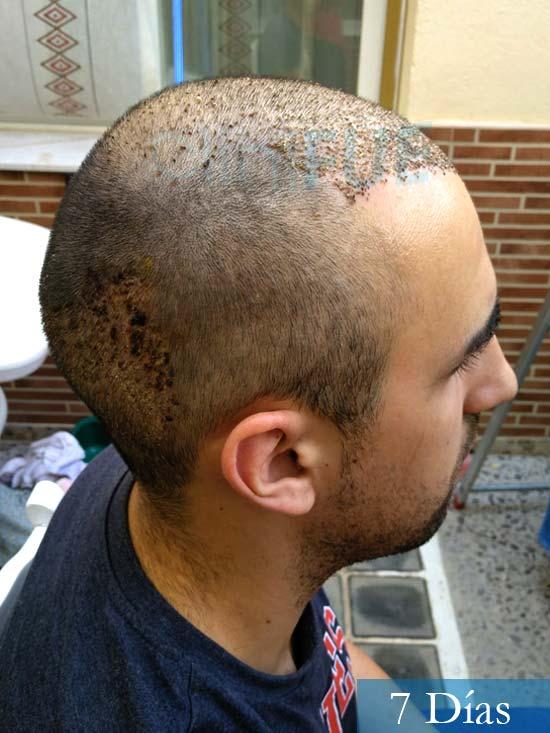 Javier trasplante de pelo turquia 7 dias 3