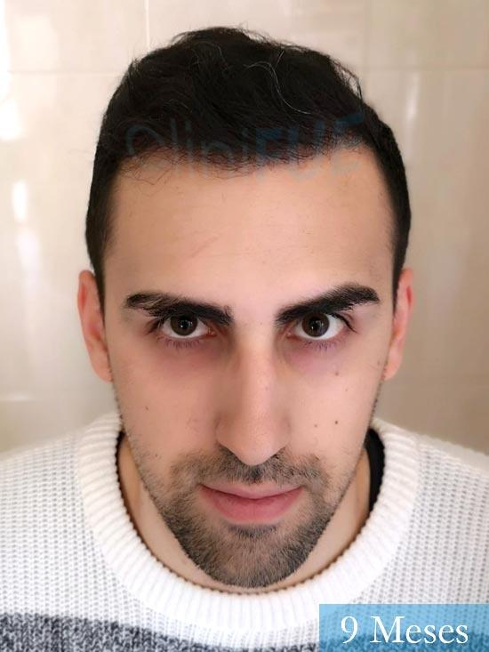 Javier trasplante de pelo turquia 9 meses