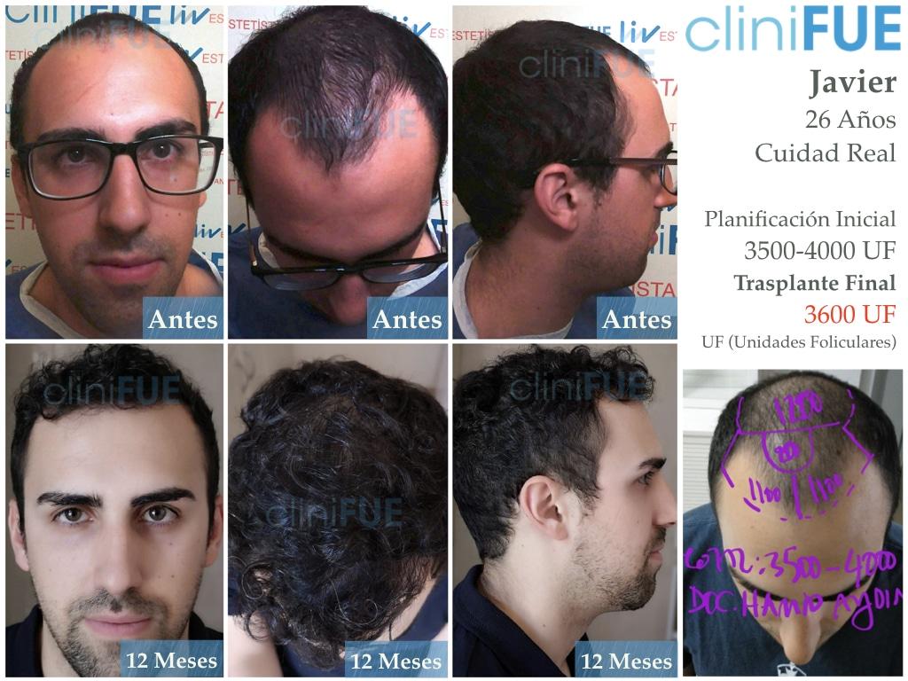 Javier trasplante de pelo turquia antes 12 meses