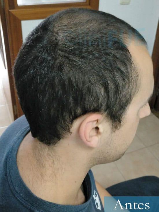 Javier trasplante de pelo turquia antes 2