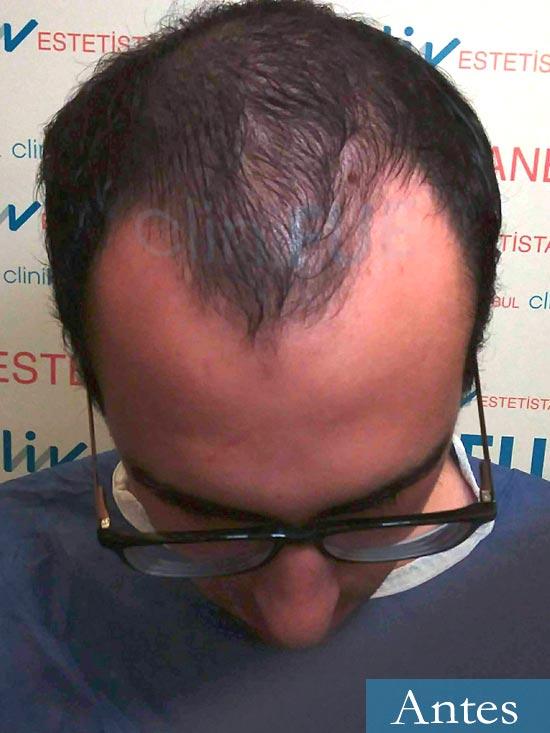 Javier trasplante de pelo turquia dia operacion antes 2