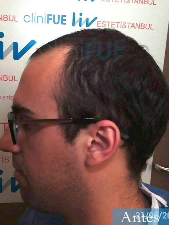 Javier trasplante de pelo turquia dia operacion antes 4