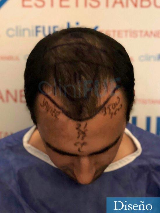 Javier trasplante de pelo turquia dia operacion 1