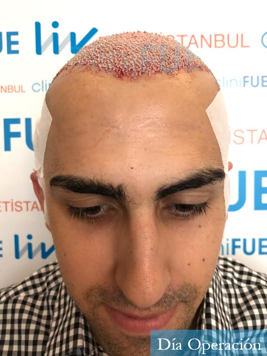 Javier trasplante de pelo turquia dia operacion 2