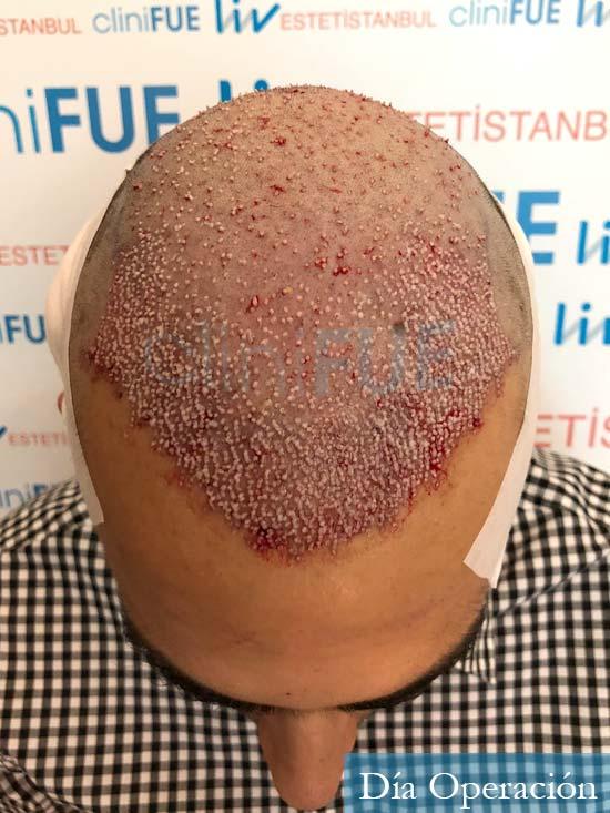 Javier trasplante de pelo turquia dia operacion 3