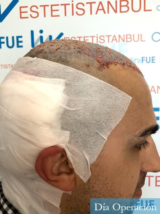 Javier trasplante de pelo turquia dia operacion
