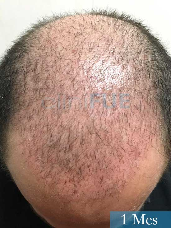 Jordi 56 Tarragona trasplante capilar turquia 1 mes 2