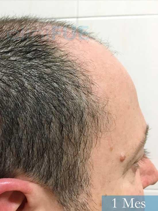 Jordi 56 Tarragona trasplante capilar turquia 1 mes 3