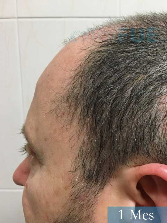 Jordi 56 Tarragona trasplante capilar turquia 1 mes 4