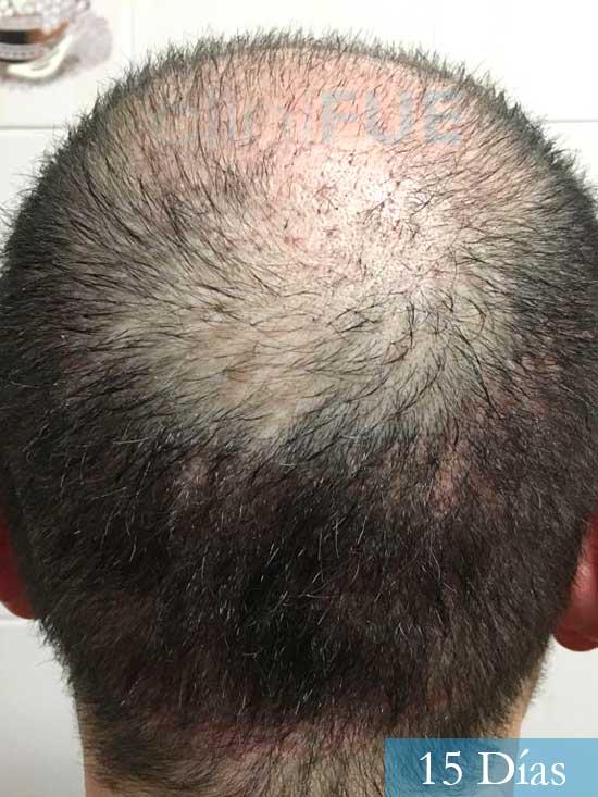 Jordi 56 Tarragona trasplante capilar turquia 1 mes 5
