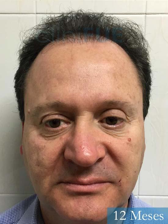 Jordi 56 Tarragona trasplante capilar turquia 12 meses
