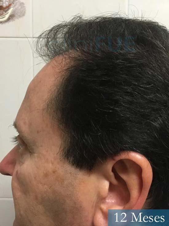 Jordi 56 Tarragona trasplante capilar turquia 12 meses 4