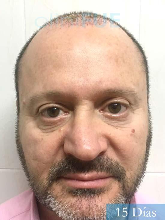 Jordi 56 Tarragona trasplante capilar turquia 15 Dias