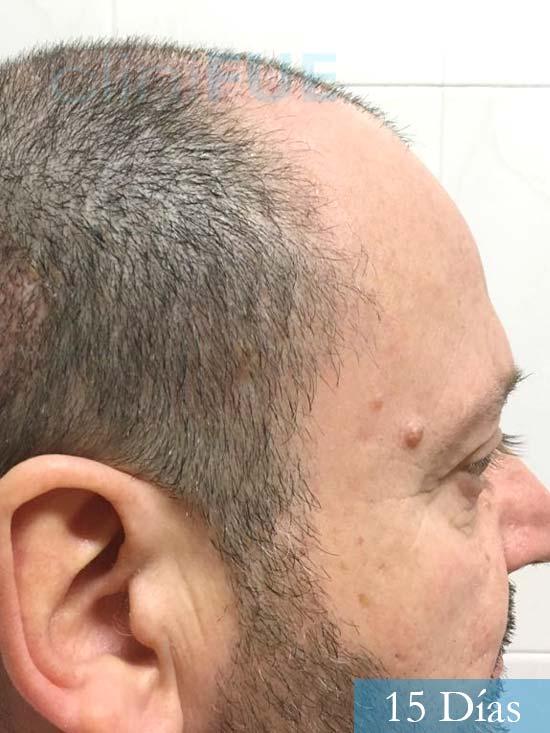 Jordi 56 Tarragona trasplante capilar turquia 15 Dias 3