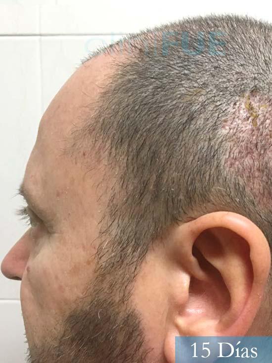 Jordi 56 Tarragona trasplante capilar turquia 15 Dias 4