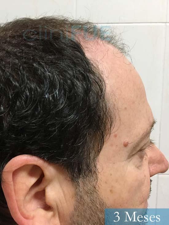 Jordi 56 Tarragona trasplante capilar turquia 3 meses