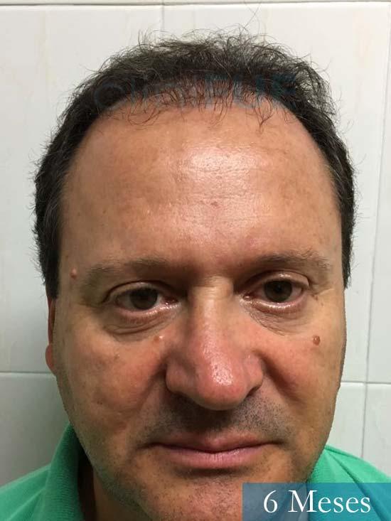 Jordi 56 Tarragona trasplante capilar turquia 6 meses