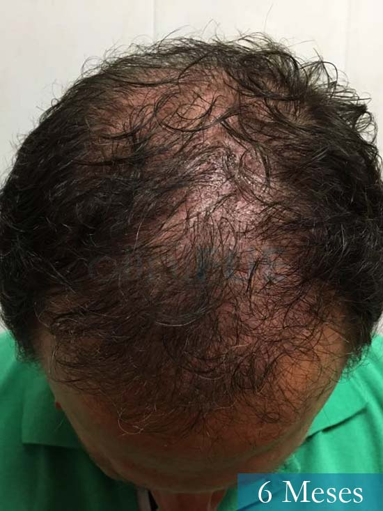 Jordi 56 Tarragona trasplante capilar turquia 6 meses 2