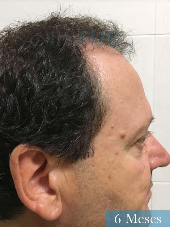 Jordi 56 Tarragona trasplante capilar turquia 6 meses 3