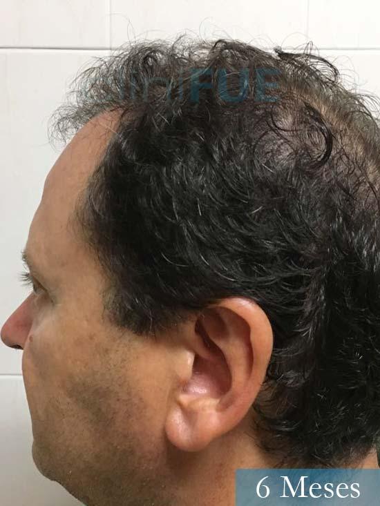 Jordi 56 Tarragona trasplante capilar turquia 6 meses 4