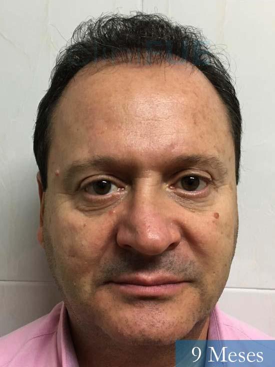 Jordi 56 Tarragona trasplante capilar turquia 9 meses