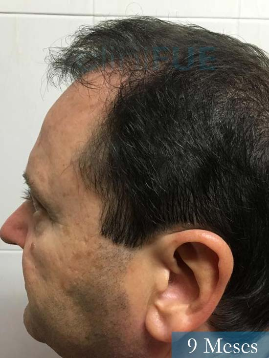 Jordi 56 Tarragona trasplante capilar turquia 9 meses 4