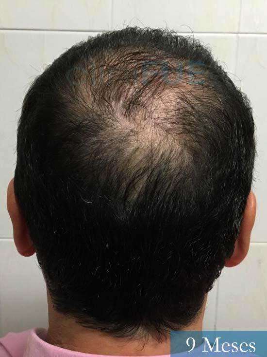 Jordi 56 Tarragona trasplante capilar turquia 9 meses 5