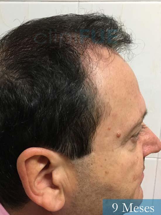 Jordi 56 Tarragona trasplante capilar turquia 9 meses 3