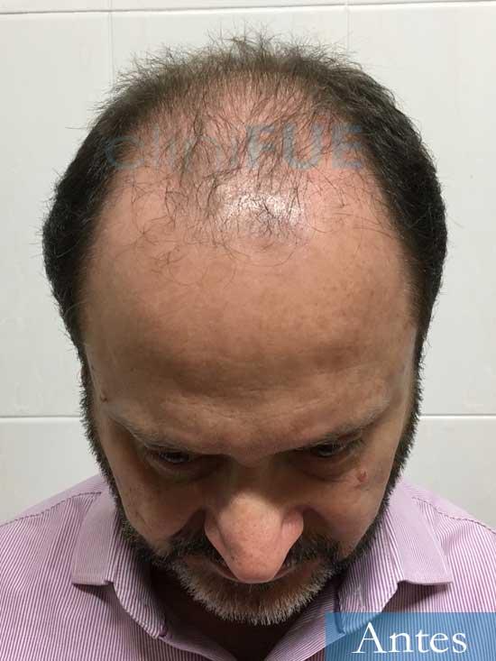 Jordi-56-Tarragona-trasplante-capilar-turquia-Antes 2