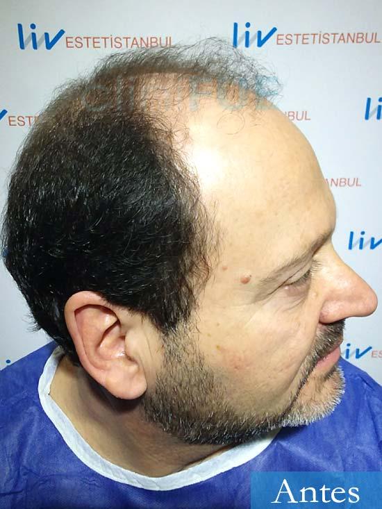 Jordi-56-Tarragona-trasplante-capilar-turquia-Antes 3