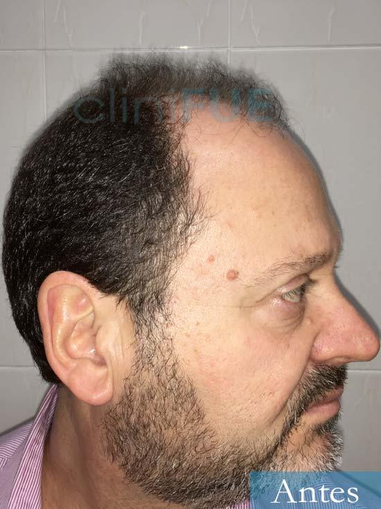 Jordi-56-Tarragona-trasplante-capilar-turquia-Antes