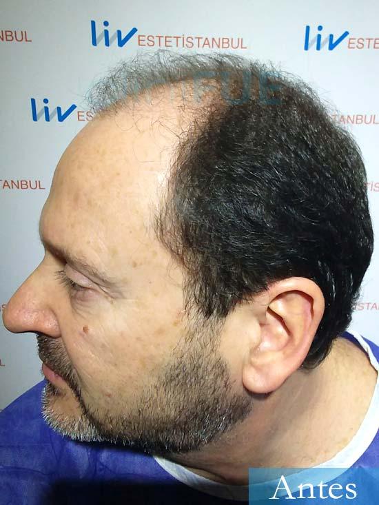 Jordi-56-Tarragona-trasplante-capilar-turquia-Antes 4