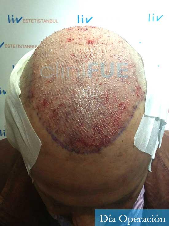Jordi-56-Tarragona-trasplante-capilar-turquia-dia operacion 2
