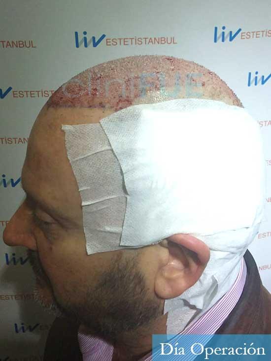 Jordi-56-Tarragona-trasplante-capilar-turquia-dia operacion 5