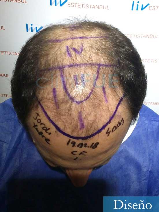 Jordi-56-Tarragona-trasplante-capilar-turquia-Antes diseno 2