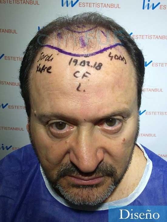 Jordi-56-Tarragona-trasplante-capilar-turquia-Antes diseno