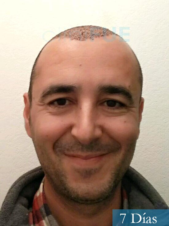 Jordi 41 años injerto capilar turquia primera operacion 7 dias