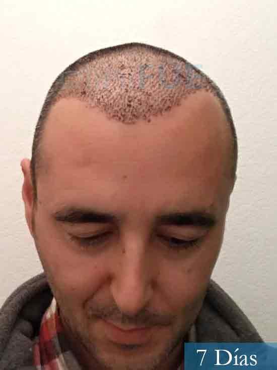 Jordi 41 años injerto capilar turquia primera operacion 7 dias 2