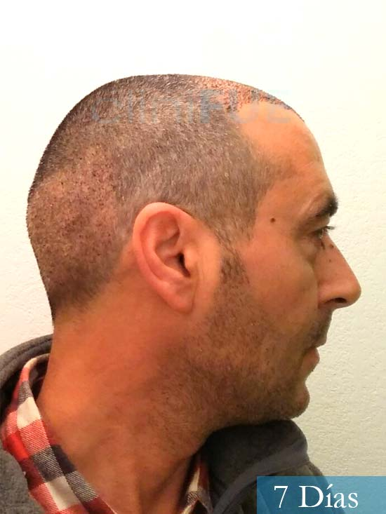 Jordi 41 años injerto capilar turquia primera operacion 7 dias 4