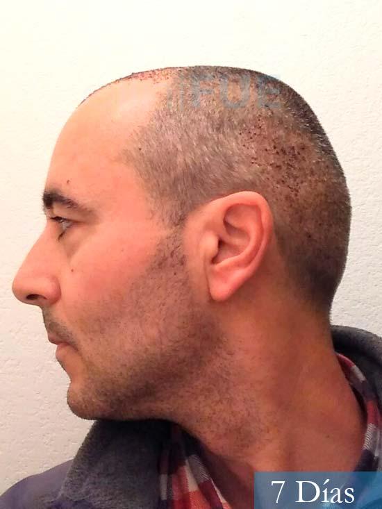 Jordi 41 años injerto capilar turquia primera operacion 7 dias 5
