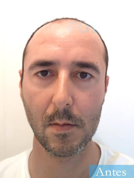 Jordi 41 años injerto capilar turquia primera operacion antes 1