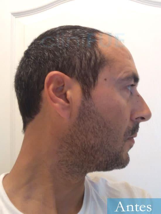 Jordi 41 años injerto capilar turquia primera operacion antes 4