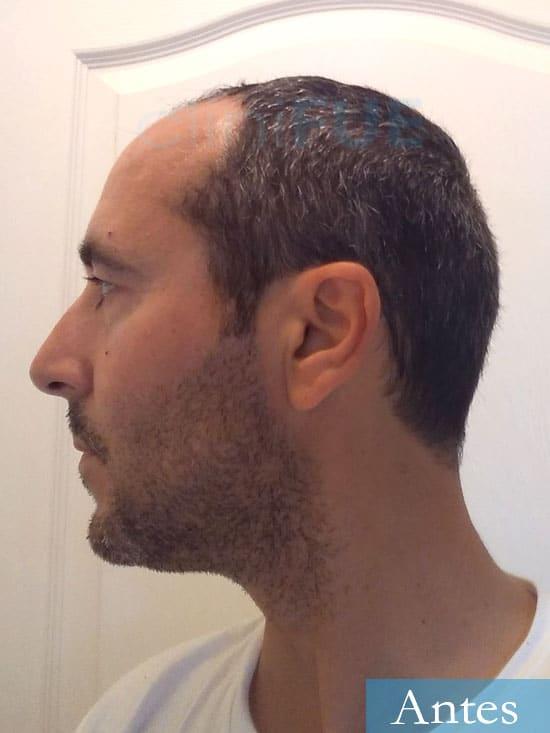 Jordi 41 años injerto capilar turquia primera operacion antes 5