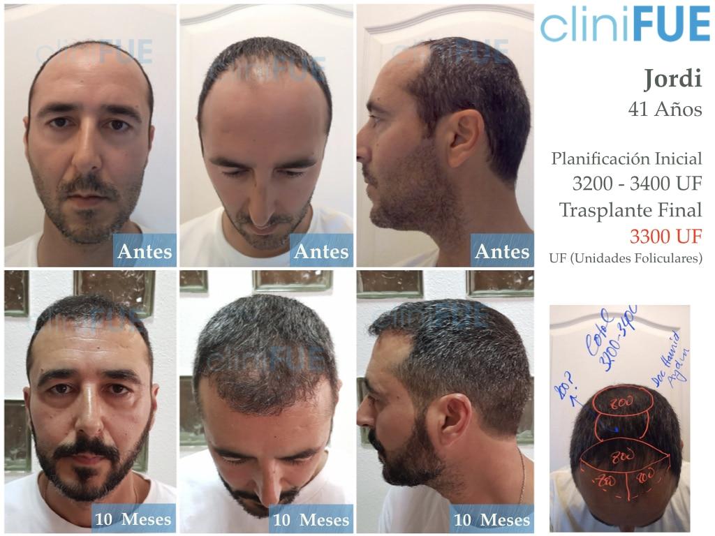 Jordi 41 años injerto capilar turquia primera operacion 10 meses