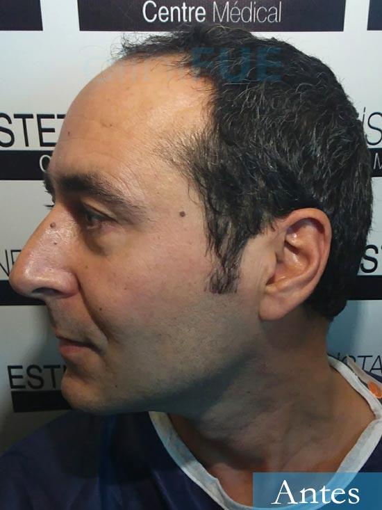 Jordi 41 años injerto capilar turquia primera operacion dia operacion antes 4