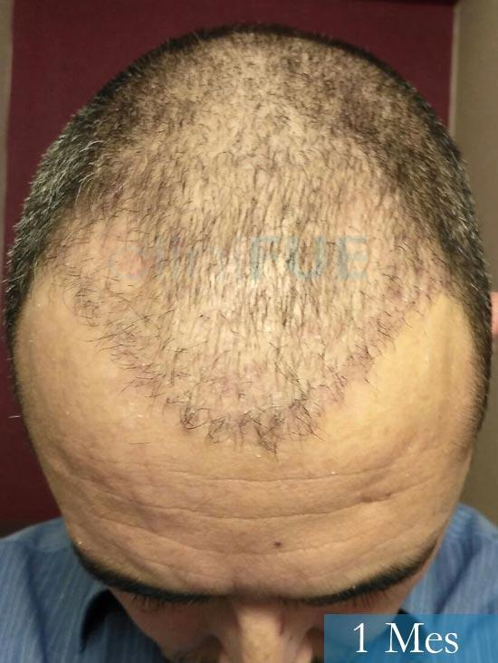 Jordi 41 años injerto capilar turquia primera operacion 1 mes 3