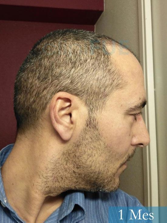 Jordi 41 años injerto capilar turquia primera operacion 1 mes 4