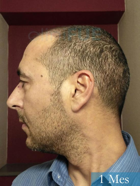 Jordi 41 años injerto capilar turquia primera operacion 1 mes 5