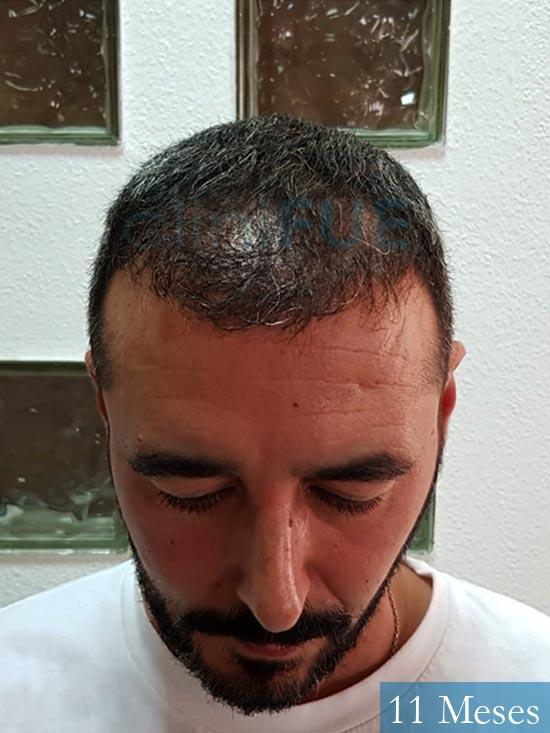 Jordi 41 años injerto capilar turquia segunda operacion antes 2